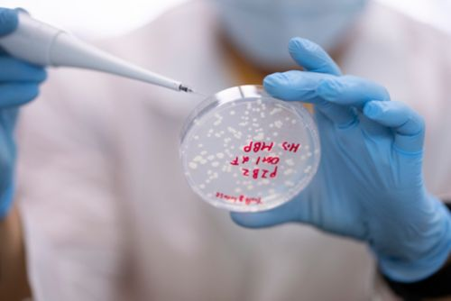 Image of a scientist holding a petri-dish