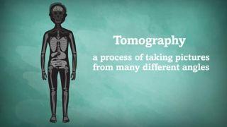 Томография— это процесс съемки под множеством разных углов.
