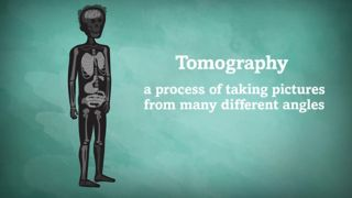 Tomography is the process of taking pictures from many different angles.