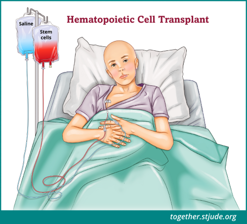 There are two basic types of transplants: allogeneic (blood-forming cells come from a donor) and autologous (the patient's own cells are used). A patient receives cells from the donor through a vein in a process much like a blood transfusion. The cells travel through the bloodstream to the center of the long bones. The transplanted cells restore the patient's ability to make healthy red blood cells, white blood cells, and platelets.