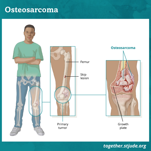Osteosarcoma is a type of bone cancer. Osteosarcoma may develop in any bone, but it usually forms in the wide ends of long bones of the leg or arm. Osteosarcomas may form inside the bone (central tumors) or on the outer surface of bone (surface tumors). Most pediatric osteosarcomas are centrally located inside the bone. Imaging tests such as X-ray may be used to check for skip lesions. A skip lesion occurs when the cancer spreads away from the primary tumor to other parts of the bone.
