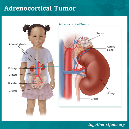 What is adrenocortical tumor? Adrenocortical tumor is a rare tumor of the adrenal gland. The adrenal glands are located on top of each kidney. The job of the adrenal glands is to produce hormones such as cortisol and aldosterone.