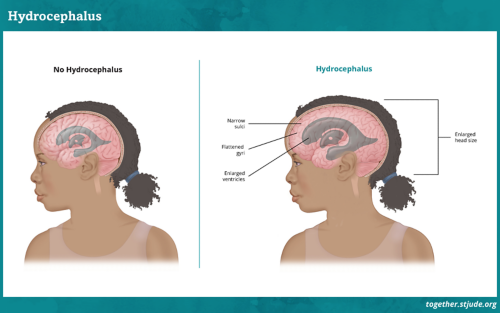 What is hydrocephalus? As the tumor grows, it may block the normal flow of cerebrospinal fluid. This causes a build-up of fluid within the brain known as hydrocephalus.