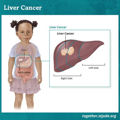 What is liver cancer? Liver cancer is rare in children and teens. It accounts for 1-2% of pediatric cancers.