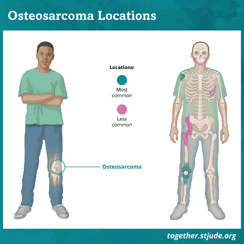 Symptoms of osteosarcoma depend on where the tumor is located. The most common places for osteosarcoma to develop are near the knee in the lower part of the thigh bone or the upper part of the shin. Another common place for osteosarcoma to develop is in the bone of the upper arm near the shoulder. Osteosarcoma may also develop in the pelvis or skull.