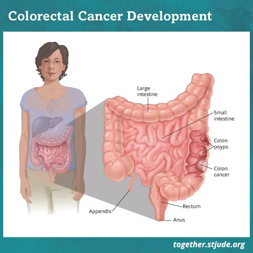 Colorectal cancer in childhood cancer survivors medical illustration