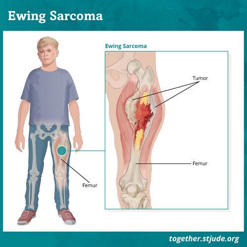 sarcoma cancer human