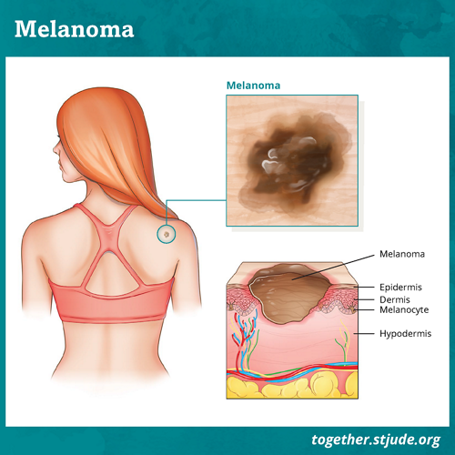 Melanoma is a type of skin cancer that can develop on any part of the skin. If left untreated, melanoma can spread to other parts of the body. In melanoma, cancer forms in skin cells called melanocytes. Melanocytes produce melanin which provides color (pigment) to the skin.