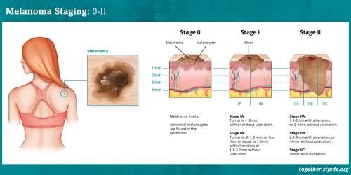 मेलेनोमा स्तर III और स्तर IV