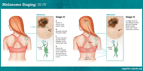 Melanoma Stage 0, Stage I, and Stage II