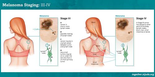 मेलेनोमा स्तर 0, स्तर I और स्तर II