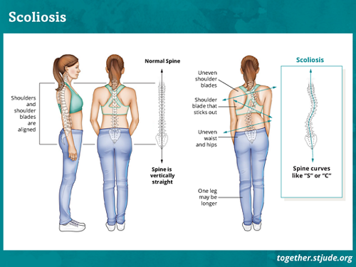 """What is scoliosis? Scoliosis occurs when the spine rotates to the side.  A healthy spine appears as a straight line when viewed from the back. With scoliosis, the spine curves like the letter """"S"""" or """"C."""""""