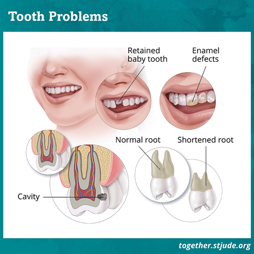 Several graphics showing tooth problems. The graphic on top left is of a retained baby tooth. The graphic on top right is showing enamel defects on a tooth. The graphic on bottom left is of a cavity. Graphic on bottom right is showing a shortened root.