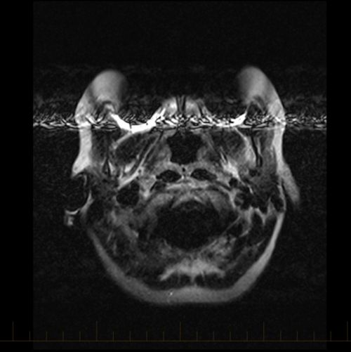 MRI with metal artifact from braces