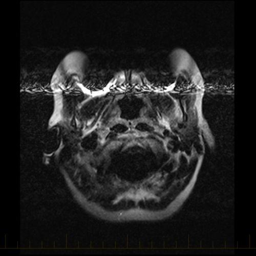 လက်ကောက်များမှ သတ္တုအကြွင်းအကျန်နှင့်အတူ MRI