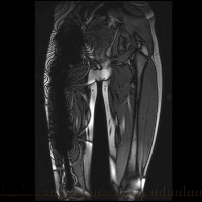 MRI of a femur that shows metal artifact