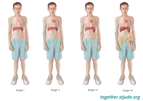 This illustration shows the areas of the body affected by disease in each stage of Non-Hodgkin Lymphoma.