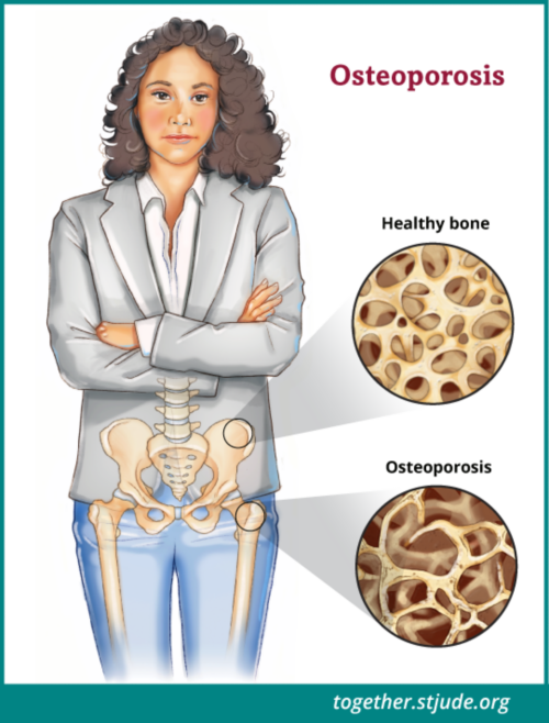 Osteoporosis is a disease marked by reduced bone mass and bone quality.