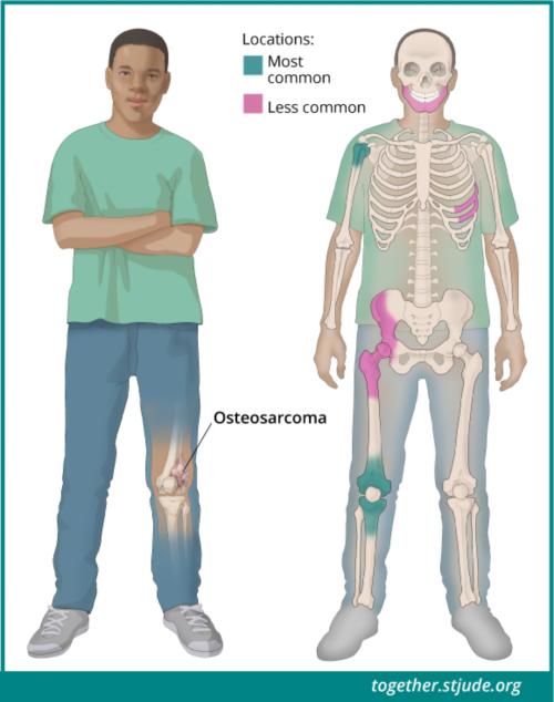 हड्डियों के कैंसर (ओस्टियोसारकोमा) के लक्षण ट्यूमर के स्थान पर निर्भर करते हैं। हड्डियों का कैंसर (ओस्टियोसारकोमा) विकसित होने के सबसे आम स्थान जांघ की हड्डी के निचले भाग में और पिंडली के ऊपरी भाग में घुटने के पास होते हैं। हड्डियों का कैंसर (ओस्टियोसारकोमा) विकसित होने का एक अन्य आम स्थान कंधे के पास ऊपरी बाजू की हड्डी है। हड्डियों का कैंसर (ओस्टियोसारकोमा) पेडू या खोपड़ी में भी हो सकता है।