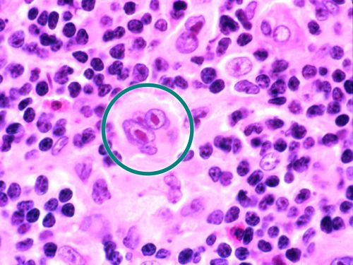 Reed-Sternberg cells, which have the appearance of owl eyes, shown in a teal circle.