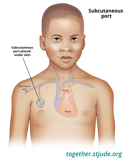 A central venous catheter can be used to take blood samples, administer chemotherapy, give fluids and electrolytes, provide parenteral nutrition, and give antibiotics and other medicines. This illustration shows an example of a subcutaneous port.