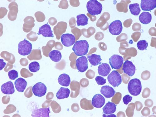 Microscope image shows bone marrow of a patient with acute lymphoblastic leukemia