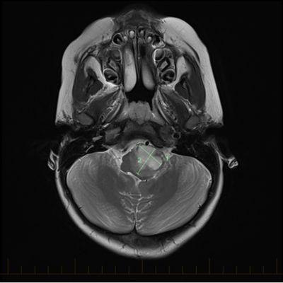 IRM en coupe axiale avec repères de taille pour un astrocytome