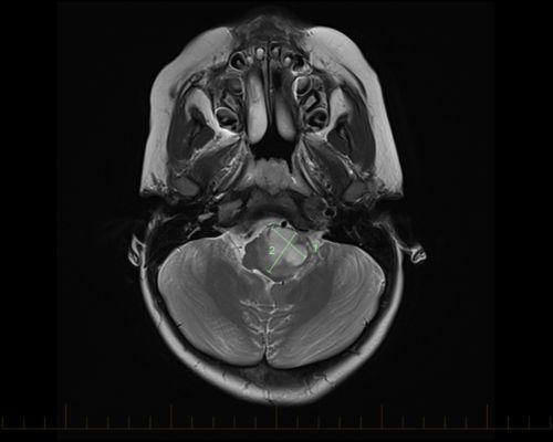 ဦးနှောက်ကြယ်ဆဲလ်မြင်းအရွယ်အစားကို မှတ်သားဖော်ပြပေးသော ဦးနှောက်ဝင်ရိုးထိပ်မှ ရိုက်ကူးသည့် MRI