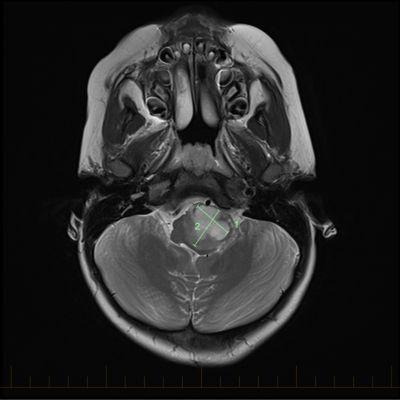 IRM axial con las marcas del tamaño de un astrocitoma