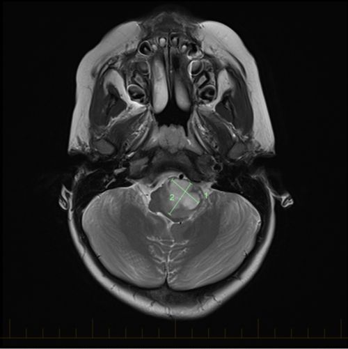 Axial MRI with size markings for an astrocytoma