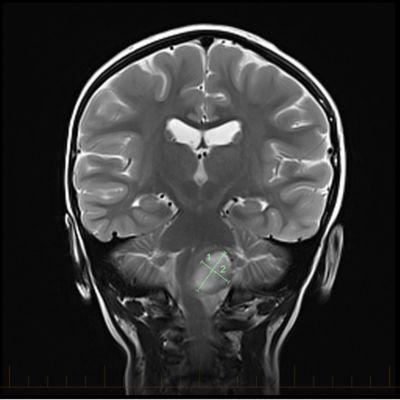 IRM en coupe coronale avec repères indiquant la taille d'un astrocytome