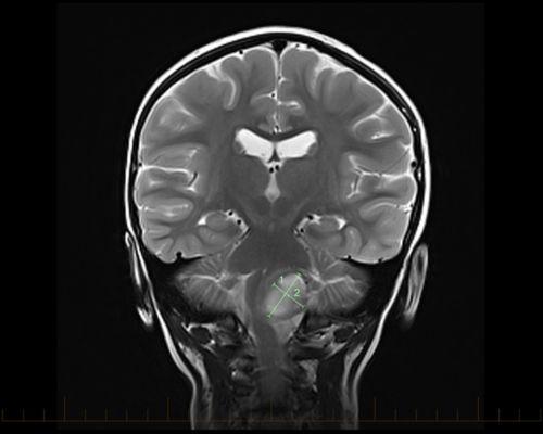 МРТ во фронтальной плоскости с метками для обозначения размеров астроцитомы