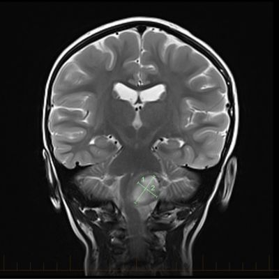 IRM coronal con las marcas que muestran el tamaño de un astrocitoma