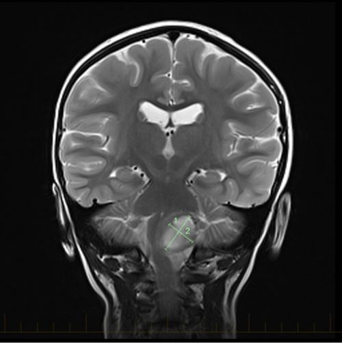 Coronal MRI with markings that show the size of an astrocytoma