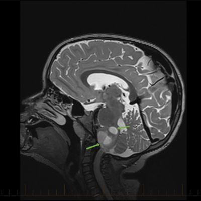 IRM en coupe sagittale avec flèches pointant vers des astrocytomes