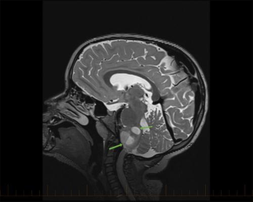 МРТ в сагиттальной плоскости со стрелками, указывающими на астроцитомы