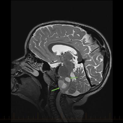 IRM sagital con flechas que apuntan hacia los astrocitomas