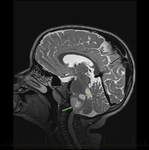 箭头指向星形细胞瘤的矢状位 MRI