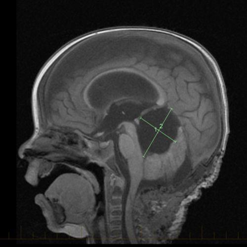 La tumeur tératoïde rhabdoïde atypique (AT/RT) est une tumeur agressive et à croissance rapide. Grâce à l'imagerie par résonance magnétique (IRM), les médecins peuvent voir la taille et l'emplacement de la tumeur.