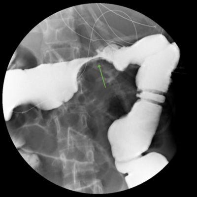 绿色小箭头指向下消化道 X 线透视检查影像中的下胃肠道阻塞部位