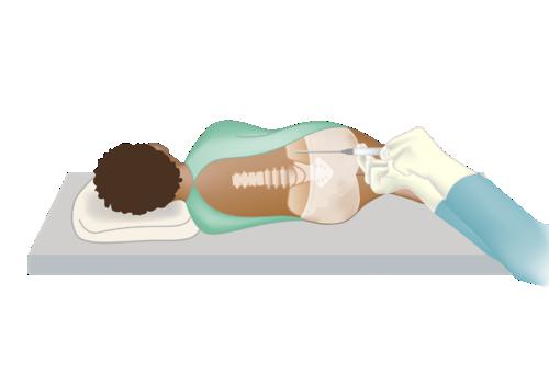 مريض مستلقٍ على جانبه بينما يتم إدخال الإبرة في عظم الورك لشفط نقي العظم