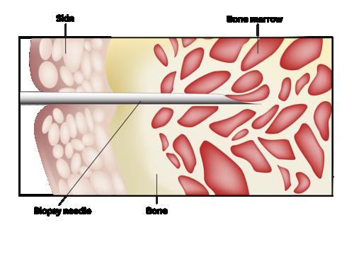Illustration montrant une aiguille de biopsie insérée dans la peau et dans l'os pour prélever l'échantillon de moelle osseuse
