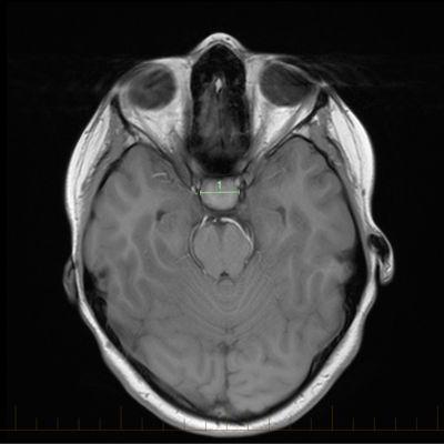 تصوير بالرنين المغناطيسي المحوري مع علامات للحجم للورم القحفي البلعومي