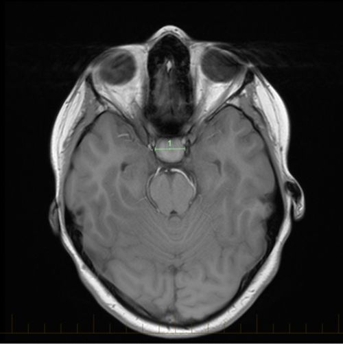 Axial MRI with size markings for a craniopharyngioma