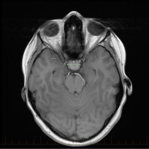 IRM axial con las marcas de tamaño de un craneofaringioma
