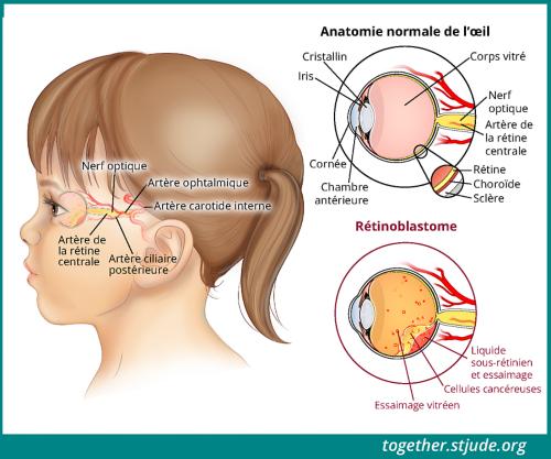 Cette illustration est une vue latérale de la tête d'une jeune fille. L'anatomie de l'œil et les signes de la maladie sont identifiés: lentille, iris, cornée, chambre antérieure, corps vitré, nerf optique, artère rénale centrale, sclère choroïde de la rétine, cellules cancéreuses, essaimage vitréen, liquide sous-rétinien et essaimage.