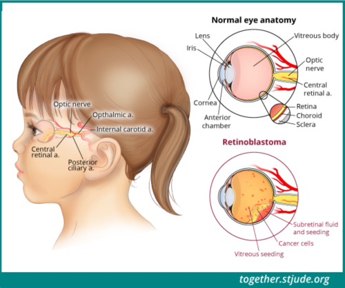 This illustration shows a side view of a young girl's head. Her eye anatomy and signs of disease are labeled: lens, iris, cornea, anterior chamber, vitreous body, optic nerve, central renal artery, retina choroid sclera, cancer cells, vitreous seeding, and subretinal fluid and seeding.