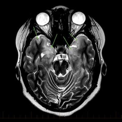 IRM axial con marcas para indicar la gliomatosis cerebri