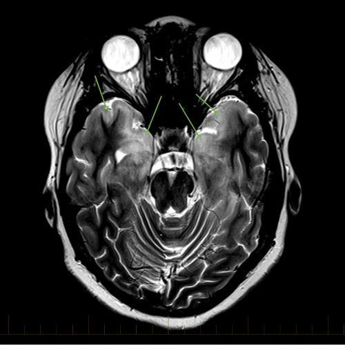 Axial MRI with markings to indicate gliomatosis cerebri