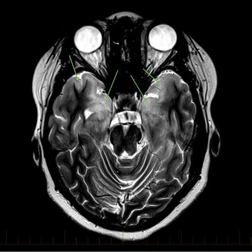 IRM en coupe axiale avec repères indiquant la gliomatose cérébrale